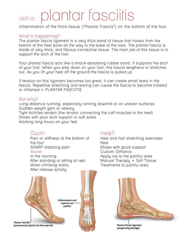 plantar fascia blog-1